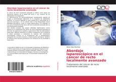 Borítókép a  Abordaje laparoscópico en el cáncer de recto localmente avanzado - hoz