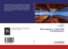 Bookcover of Mini Implants - A New ERA In Orthodontics