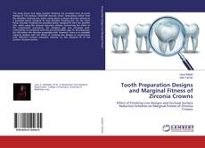 Bookcover of Tooth Preparation Designs and Marginal Fitness of Zirconia Crowns