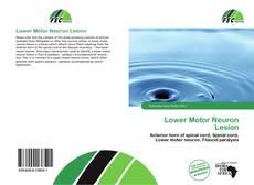 Buchcover von Lower Motor Neuron Lesion