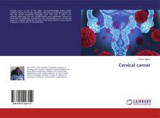Capa do livro de Cervical cancer