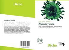 Capa do livro de Alopecia Totalis