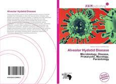 Bookcover of Alveolar Hydatid Disease
