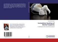 Immediate loading of Dental Implants的封面