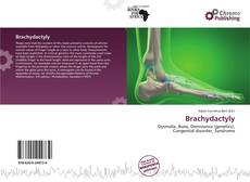 Bookcover of Brachydactyly
