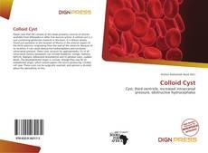 Copertina di Colloid Cyst