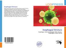 Buchcover von Esophageal Stricture