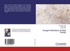 Capa do livro de Fungal infections of Oral Cavity