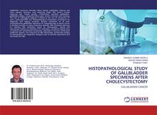 Bookcover of Histopathological Study Of Gallbladder Specimens After Cholecystectomy