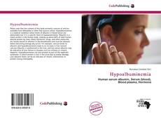 Bookcover of Hypoalbuminemia