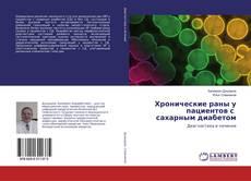 Bookcover of Хронические раны у пациентов с сахарным диабетом