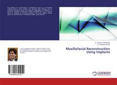 Bookcover of Maxillofacial Reconstruction Using Implants