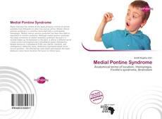 Borítókép a  Medial Pontine Syndrome - hoz