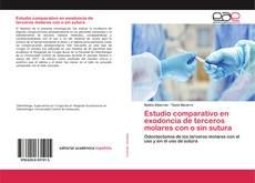 Bookcover of Estudio comparativo en exodoncia de terceros molares con o sin sutura