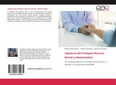 Ligadura del Prolapso Mucoso Rectal y Hemorroides kitap kapağı