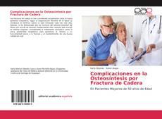 Bookcover of Complicaciones en la Osteosíntesis por Fractura de Cadera
