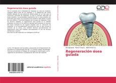 Borítókép a  Regeneración ósea guiada - hoz