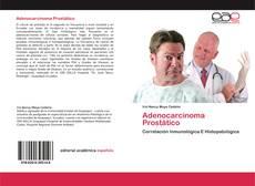 Portada del libro de Adenocarcinoma Prostático