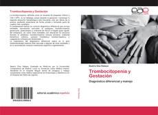 Buchcover von Trombocitopenia y Gestación