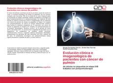 Borítókép a  Evolución clínica e imagenológica de pacientes con cáncer de pulmón - hoz