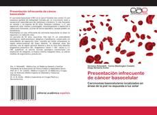 Borítókép a  Presentación infrecuente de cáncer basocelular - hoz
