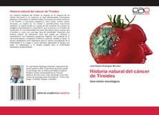 Borítókép a  Historia natural del cáncer de Tiroides - hoz