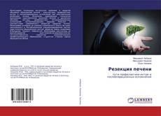 Bookcover of Резекция печени