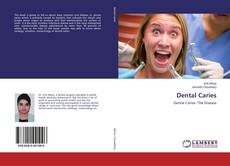 Bookcover of Dental Caries