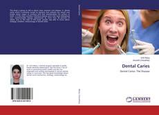 Buchcover von Dental Caries