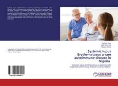 Обложка Systemic lupus Erythematosus a rare autoimmune disease in Nigeria