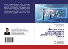 Bookcover of Диагностика и торакопластика воронкообразной деформации грудной клетки