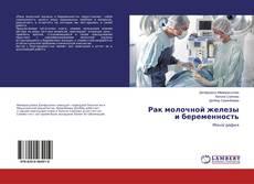 Buchcover von Рак молочной железы и беременность