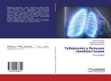 Туберкулез у больныхгемобластозами的封面
