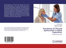 Bookcover of Prevalence of Thyroid Dysfunction in Adult Population