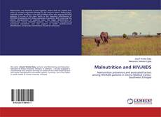 Bookcover of Malnutrition and HIV/AIDS