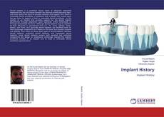 Bookcover of Implant History