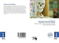 Bookcover of Central Facial Palsy