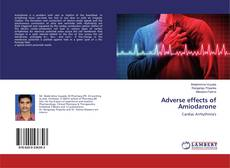 Bookcover of Adverse effects of Amiodarone