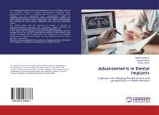 Обложка Advancements in Dental Implants