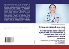 Bookcover of Эхокардиографические и патоморфологические признаки отторжения у рецепиентов после трансплантации сердца