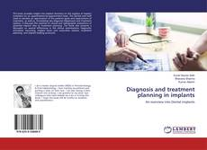 Обложка Diagnosis and treatment planning in implants