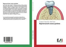 Bookcover of Rigenerazione ossea guidata