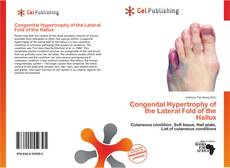 Bookcover of Congenital Hypertrophy of the Lateral Fold of the Hallux