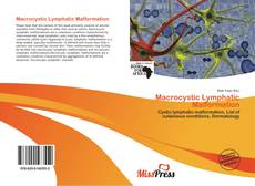 Bookcover of Macrocystic Lymphatic Malformation
