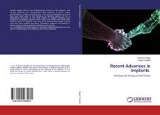 Bookcover of Recent Advances in Implants