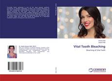 Bookcover of Vital Tooth Bleaching