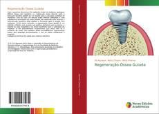 Capa do livro de Regeneração Óssea Guiada