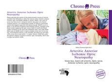 Buchcover von Arteritic Anterior Ischemic Optic Neuropathy