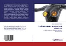Bookcover of Заболевания молочной железы