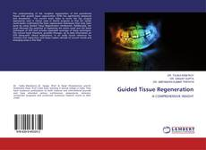 Portada del libro de Guided Tissue Regeneration
